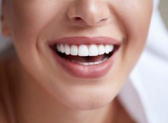 Diferitele avantaje si dezavantaje pe care le poti avea daca vrei fatete dentare